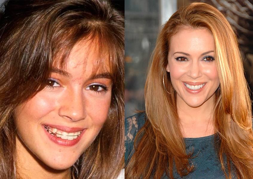 Брекеты до и после фото звезды