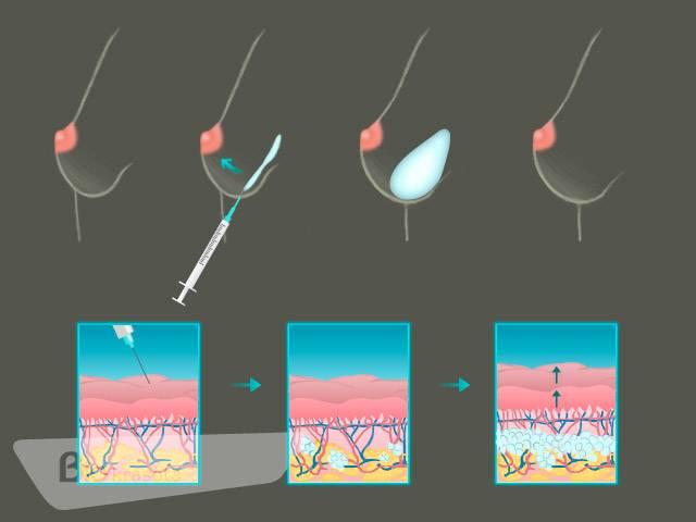 Увеличение груди филлерами: варианты проведения и последствия