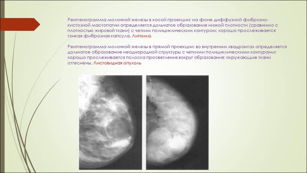 Фиброзно аденоматозная мастопатия лечение