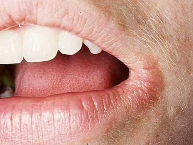 Заеды в уголках рта у детей — причины возникновения, симптомы и лечение