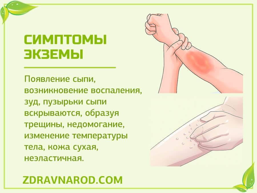 Дисгидротическая экзема: причины, симптомы, лечение, профилактика