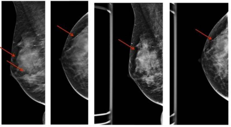 Что такое фиброзная мастопатия на фоне жировой инволюции