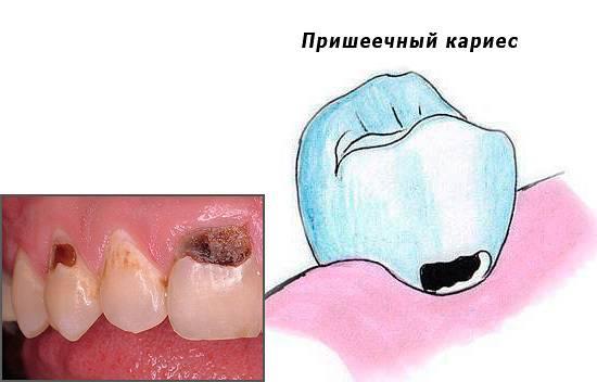 Болит зуб при надавливании
