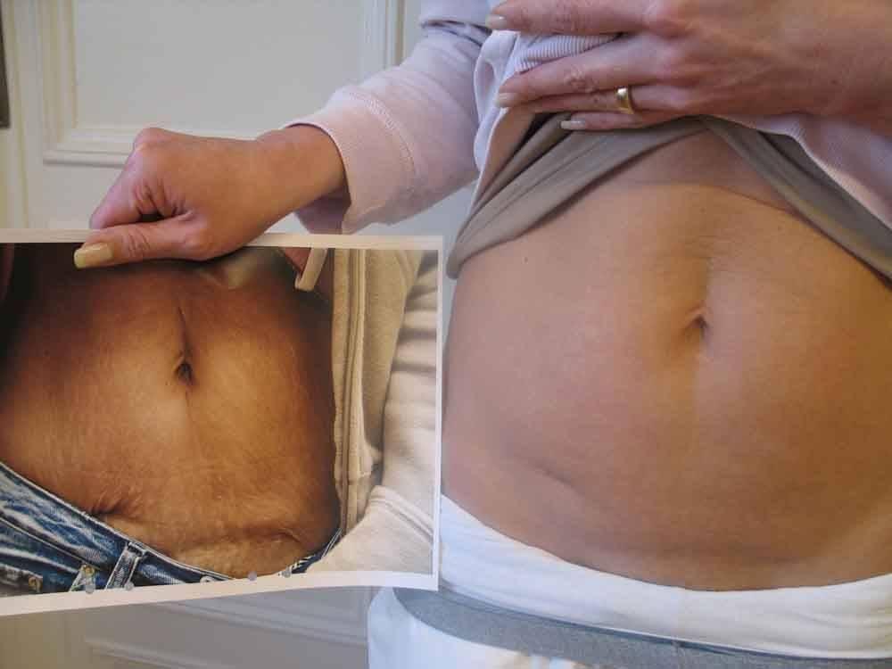 Все доступные методы, чтобы убрать шрам на животе