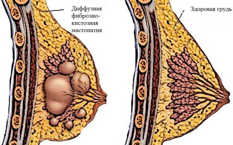 Признаки диффузной фиброзно-кистозной мастопатии, ее развитие и диагностика