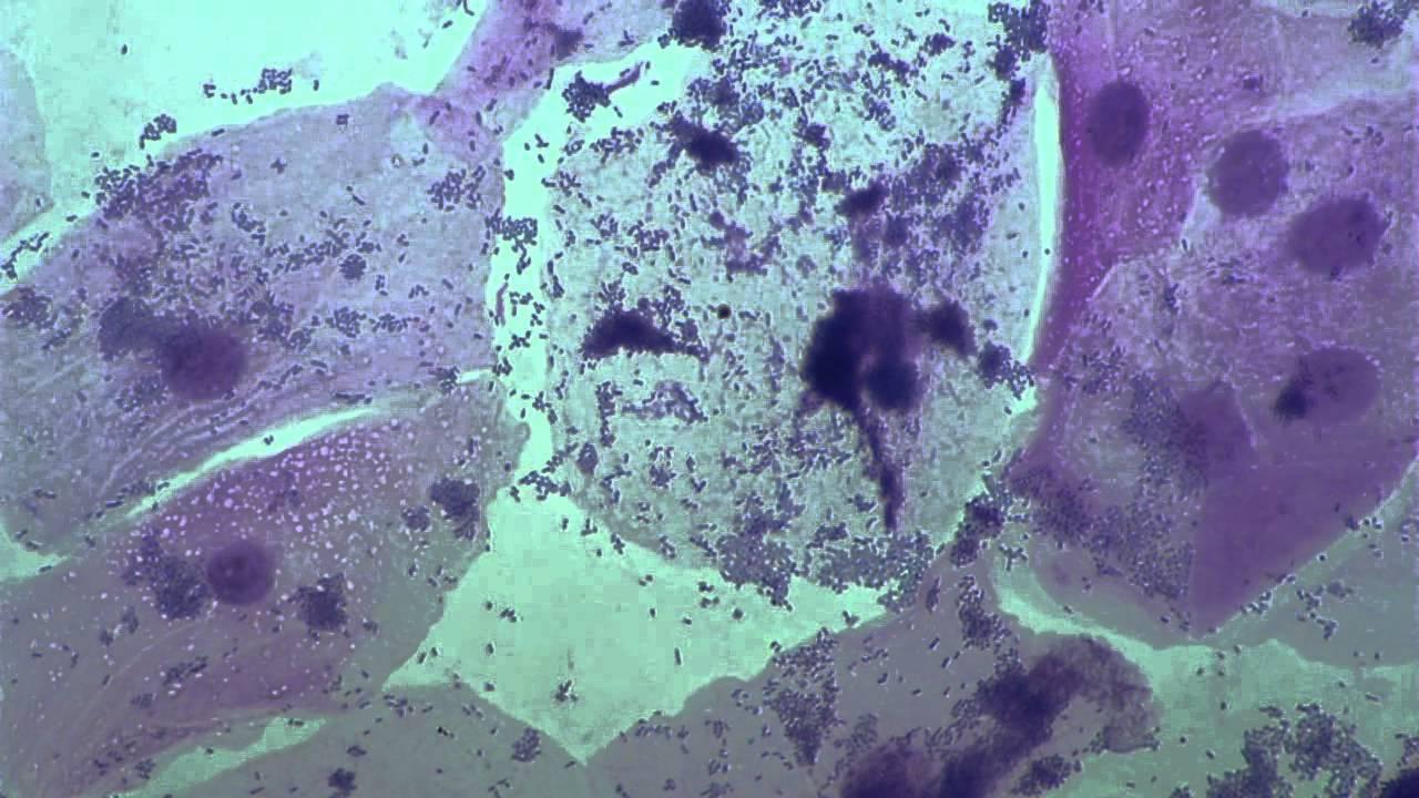 Бактериальный вагиноз. причины, современная диагностика, эффективное лечение и профилактика болезни.