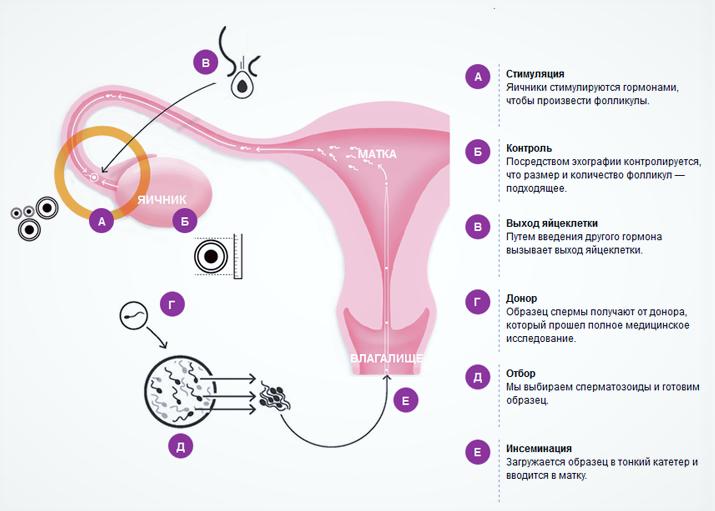 Гормональные препараты при поликистозе яичников
