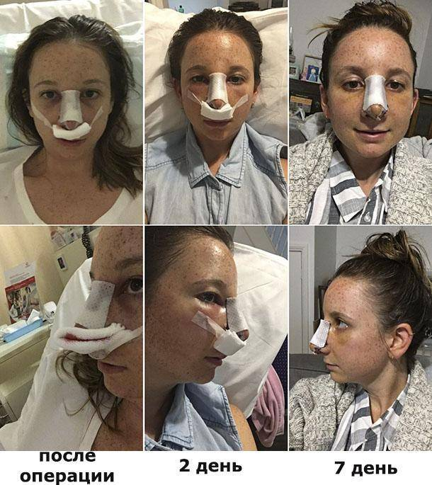 Особенности проведения безоперационной ринопластики носа