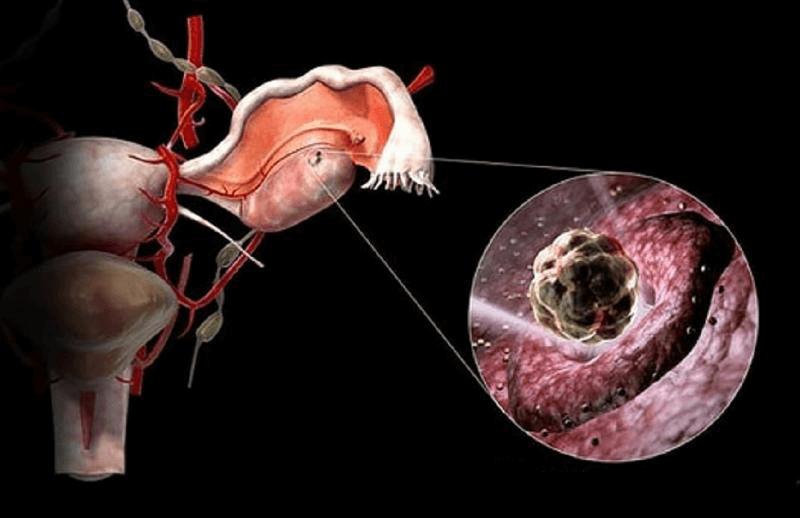 Понятие овариального резерва яичников