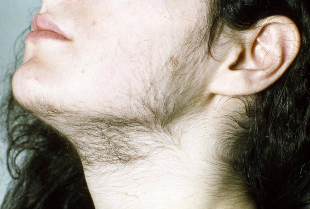 Гипертрихоз – заболевание, проявляющееся в избыточном росте волос
