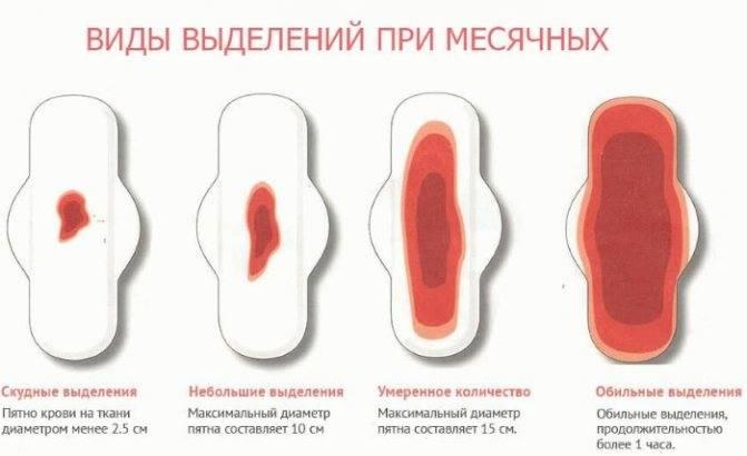 Водянистые выделения у женщин при климаксе