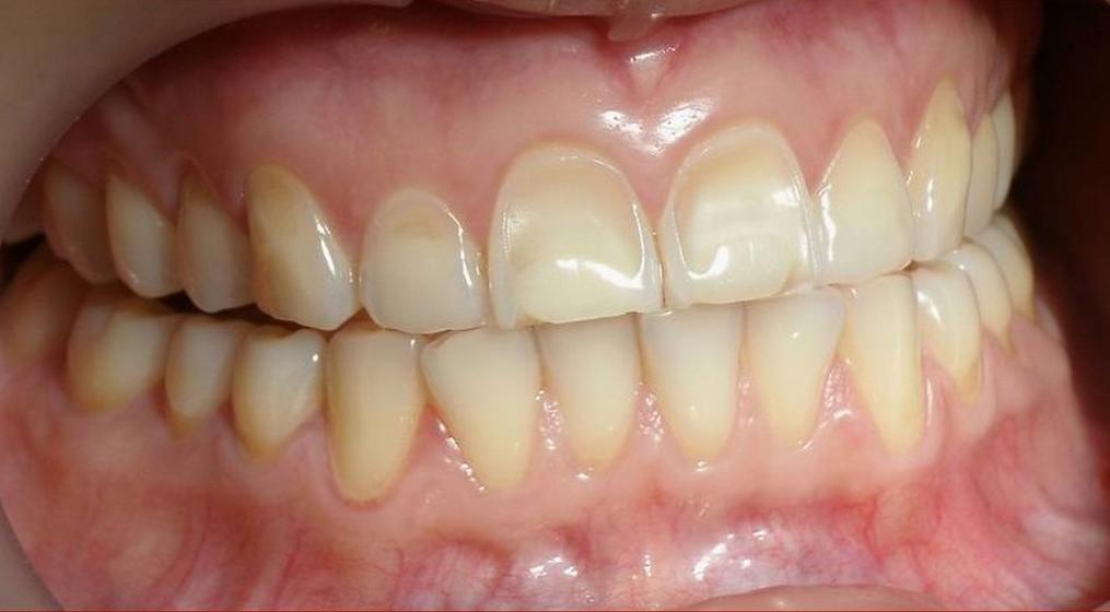 Что такое тетрациклиновые зубы: симптомы и способы лечения