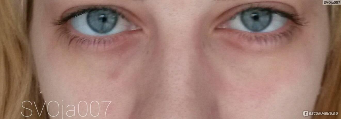 Мази от мешков под глазами