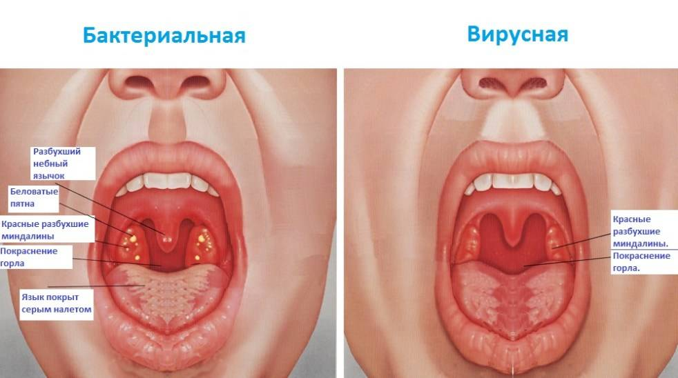 Как лечить бактериальный тонзиллит: эффективные препараты, народные средства, физиотерапия