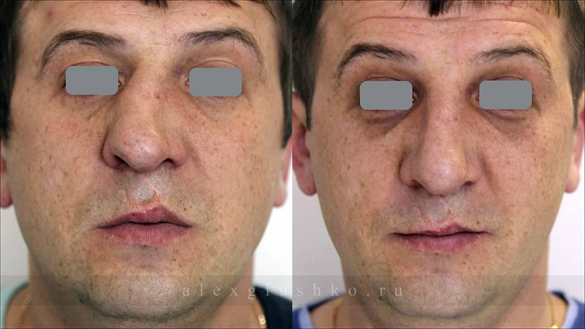 Септопластика носа: особенности восстановительного периода