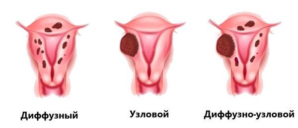 Умеренно диффузные изменения миометрия по типу эндометриоза