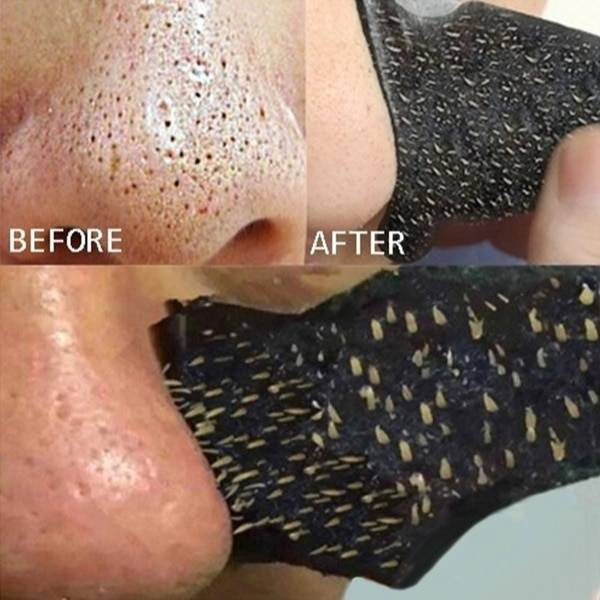 Подборка лучших полосок для носа от черных точек