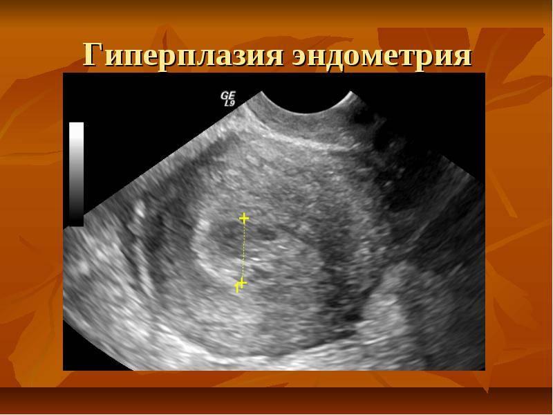 Гиперплазия эндометрия в постменопаузе лечение народными средствами