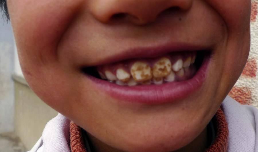Флюороз зубов