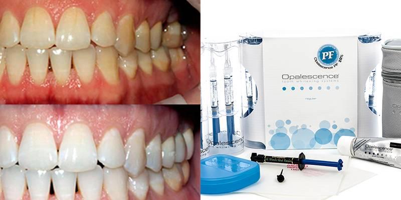 Система отбеливания зубов opalescence boost