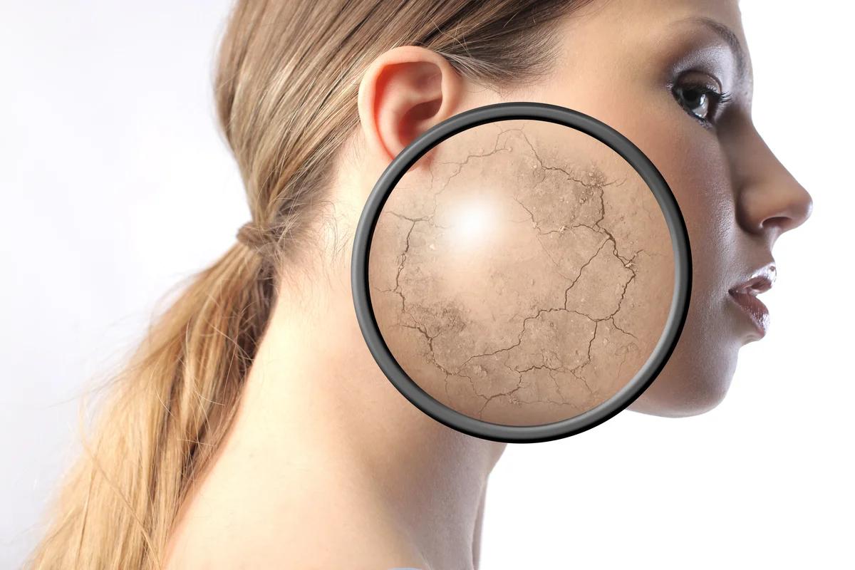 Важные правила, как ухаживать за сухой кожей лица, которые следует знать