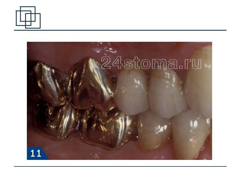 Штампованные коронки: доступная альтернатива дорогим изделиям или прошлое стоматологии?