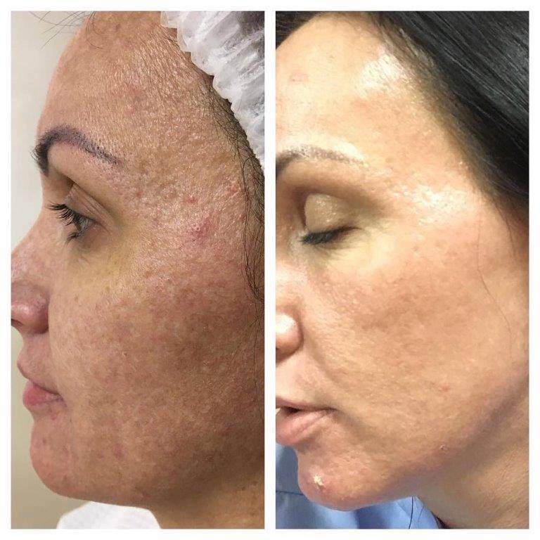 Микрокристаллическая дермабразия (механический пилинг) для лица