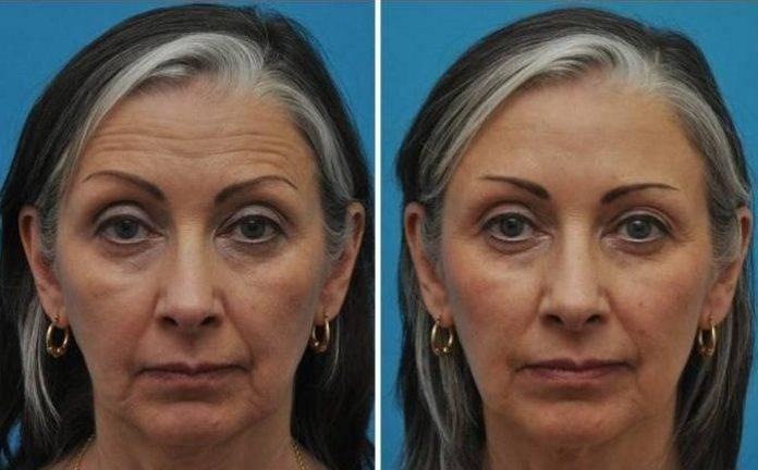Диспорт: отзывы, фото до и после