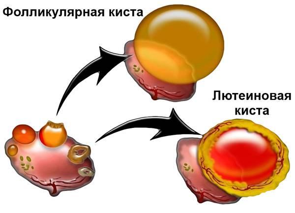 Топ-10 народных средств от кисты яичника