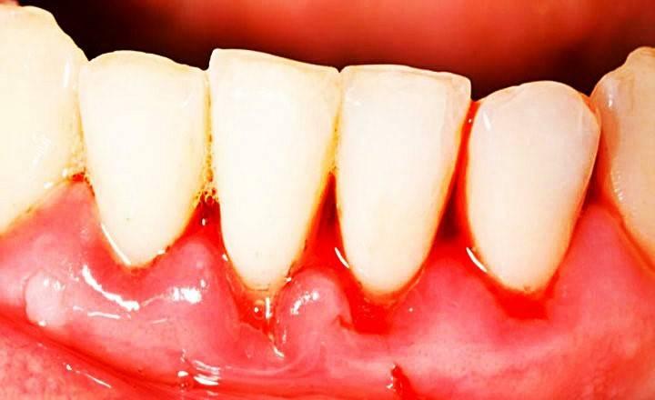 Гингивит (воспаление десен) – виды и формы (катаральный, гипертрофический, язвенный, некротический, острый и хронический), причины заболевания, симптомы (запах изо рта, боль, кровоточивость и др.), методы диагностики, фото
