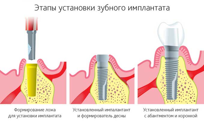 Безоперационная имплантация зубов