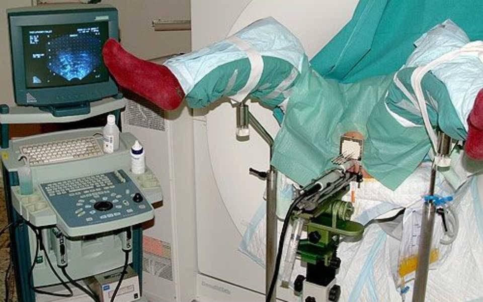 Лечение рака шейки матки методом лучевой терапии: отзывы, последствия