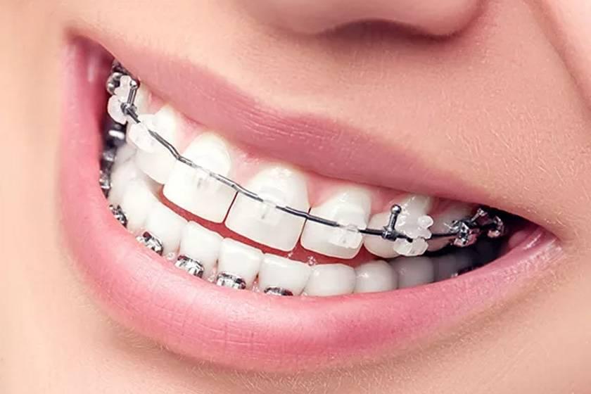 Реконструкция прикуса и зубов