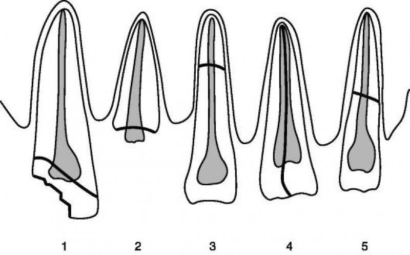 Когда сломан корень зуба, что стоит делать пациенту?