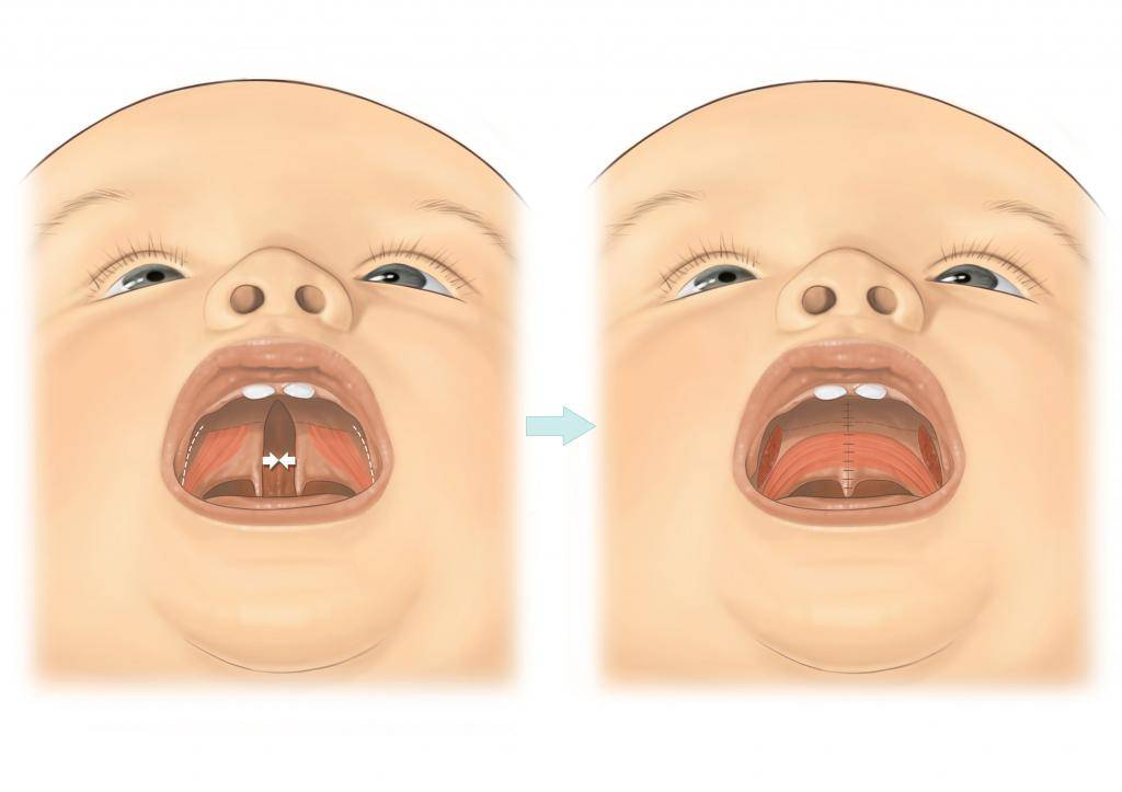 Белая точка во рту у грудничка