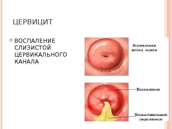 Цервицит или воспаление шейки матки — в чем опасность?