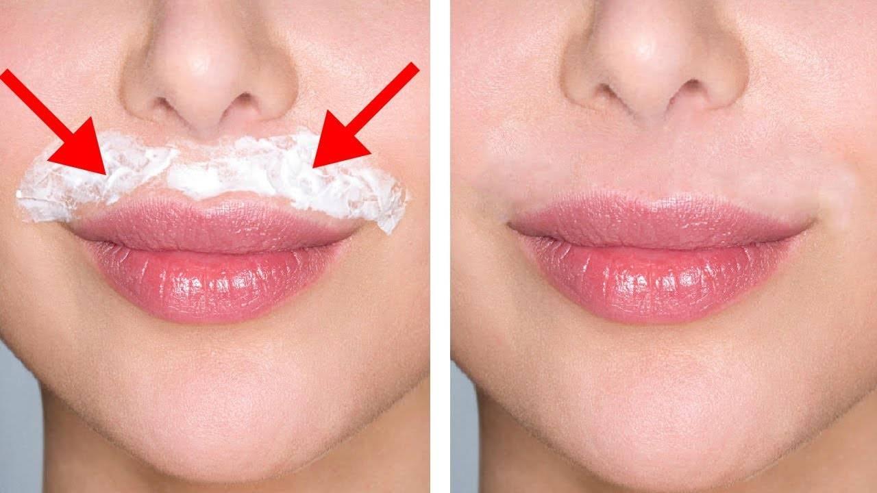 Как убрать усики над верхней губой у женщин?