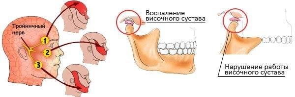 Щелкает челюсть при открытии рта: почему так происходит, как избавиться?