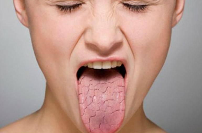 Воняет между зубов. причины и способы лечения запаха от десен