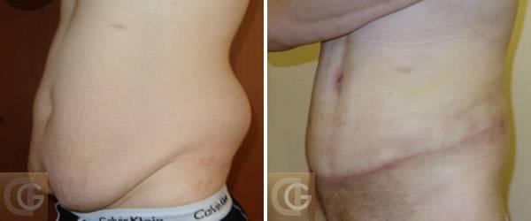 Пластическая операция или как похудеть быстро