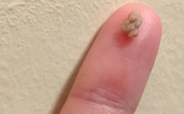 Белые шарики в горле на гландах с неприятным запахом: причины и способы лечения