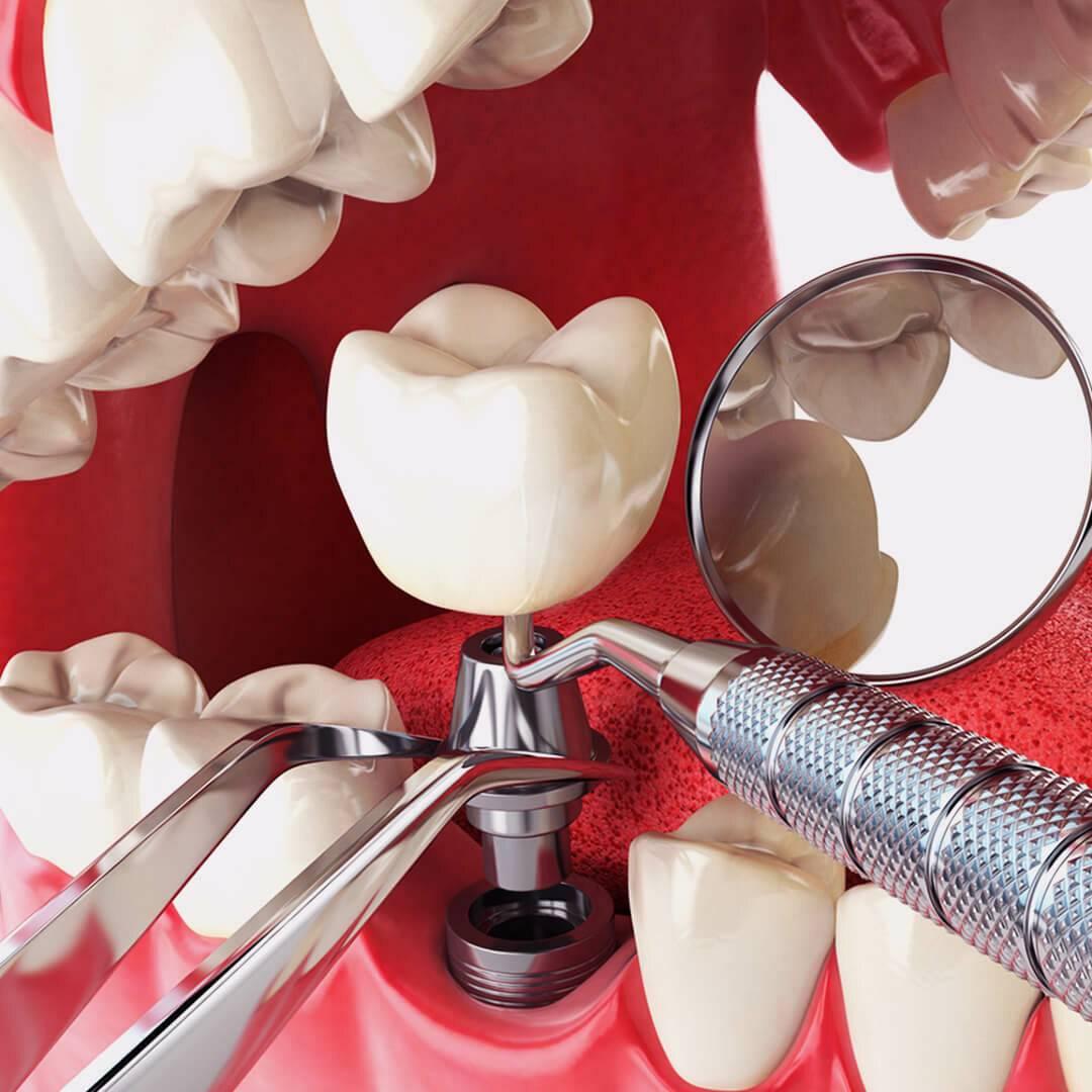 Имплантация зубов в условиях сахарного диабета 1 типа