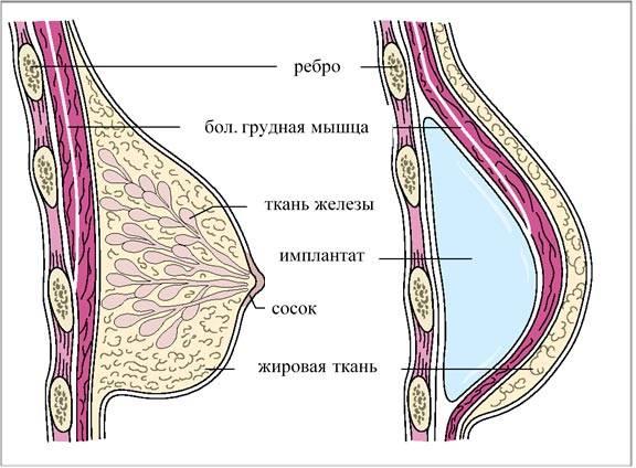 Фоторепортаж операции: маммопластика после рака молочной железы