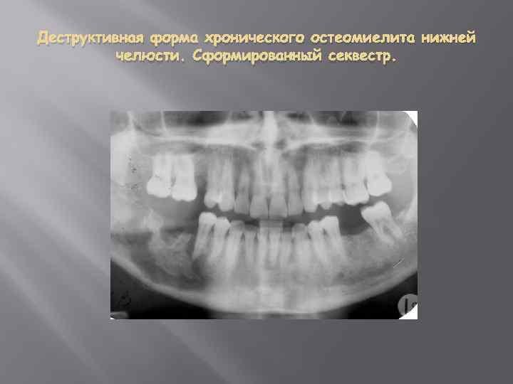 Описание и фото рака челюсти: его причины, симптомы и способы распознавания