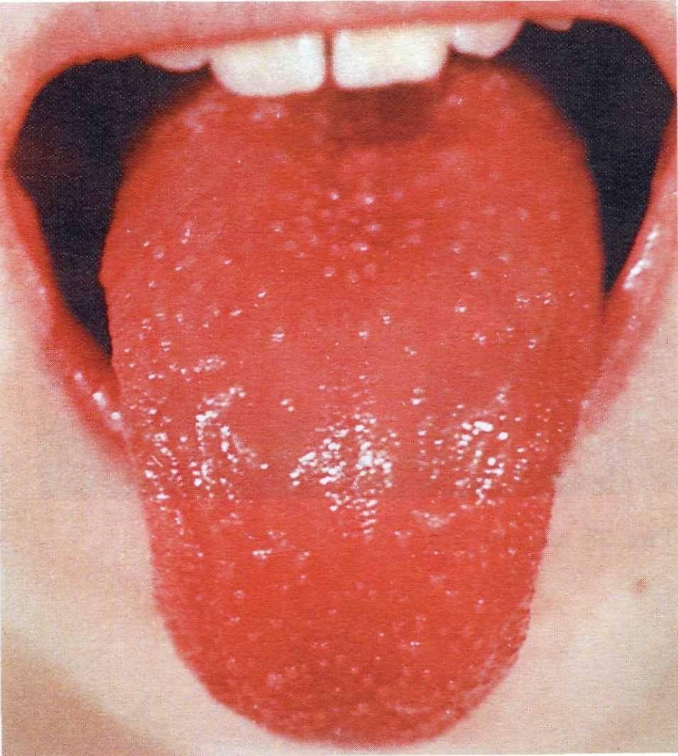 Жжение во рту и на языке, губах, горле. причины, симптомы, лечение болезни