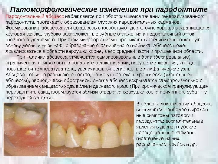 Температура при абсцессе зуба