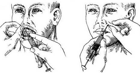 Узнаем, что такое проводниковая анестезия в стоматологии