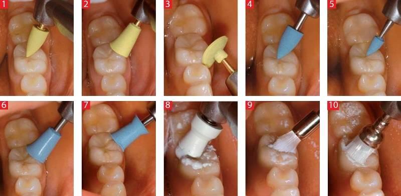 Чистка зубов от зубного камня ультразвуком