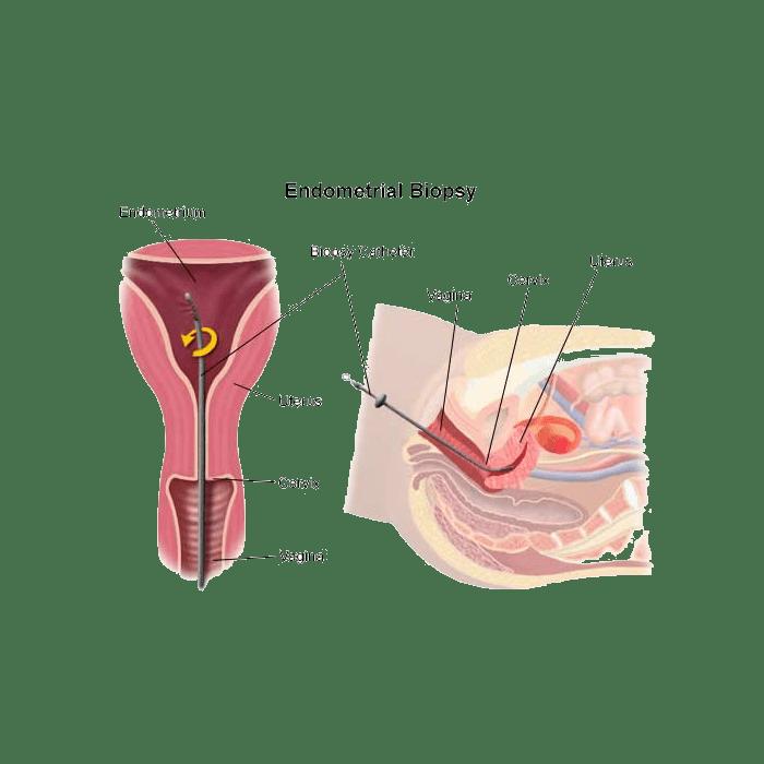 Что такое аспират из полости матки? как происходит взятие?