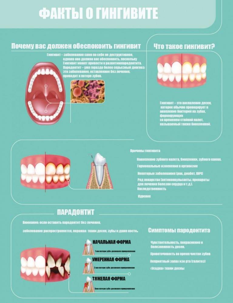 Симптомы и способы лечения гингивита у детей — гипертрофической, катаральной и герпетической формы заболевания